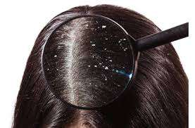 menghilangkan ketombe dan rambut rontok